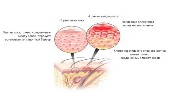 препараты относящиеся к статинам